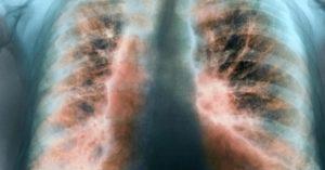 идиопатического фиброза легких