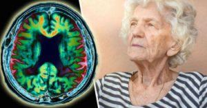 ирный день болезни Альцгеймера