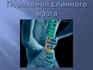 всемирный день травмы спинного мозга